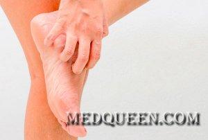 Болезни кожи ладоней и подошв