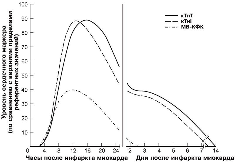 Уровень миокардиальных маркеров в крови при инфаркте миокарда