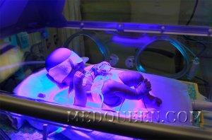 Гемолитическая болезнь новорожденных