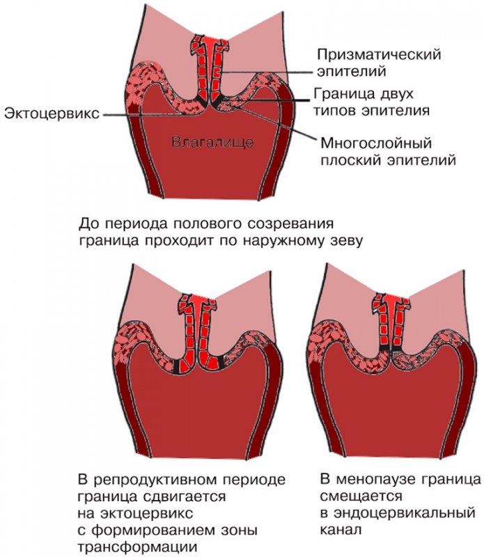 Положение границы (стыка) призматического и плоского эпителия