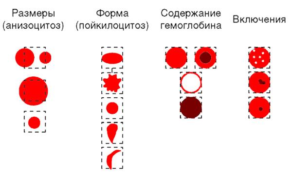 Морфологиечкие изменения эритроцитов