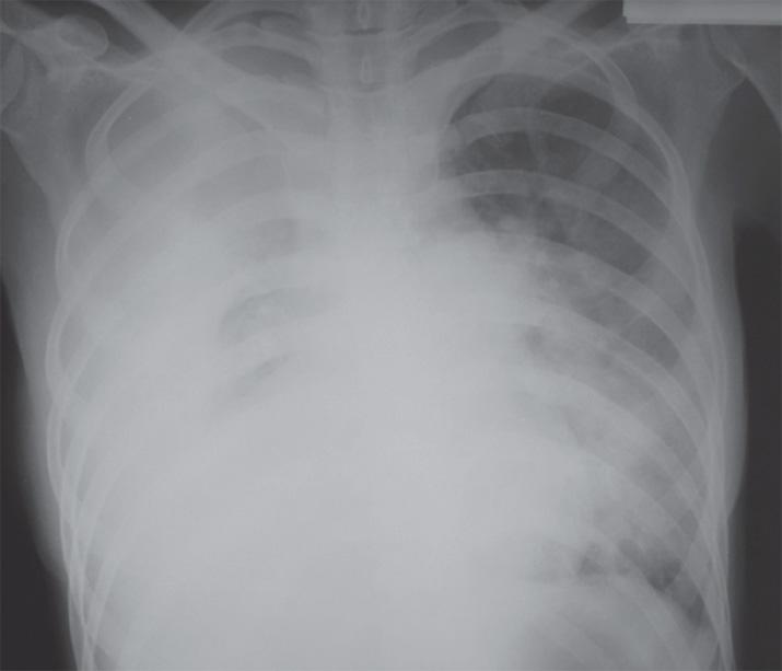 Правосторонний гидроторакс, полисегментарная левосторонняя пневмония