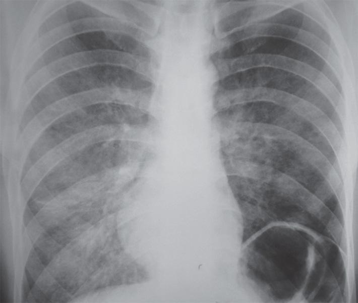 Двусторонняя полисегментарная пневмония с интерстициальной инфильтрацией легочной ткани