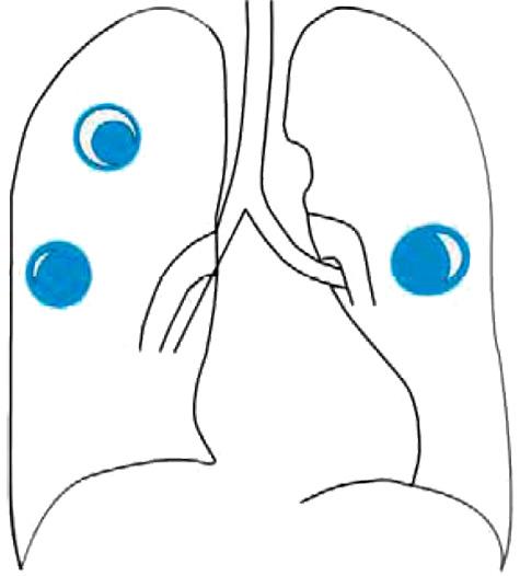 Инфильтраты при аспергиллезе легких