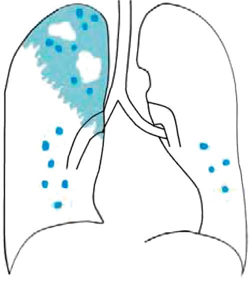 Туберкулезный процесс в легких