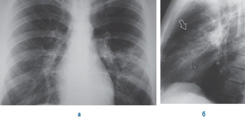 Левосторонняя бронхопневмония