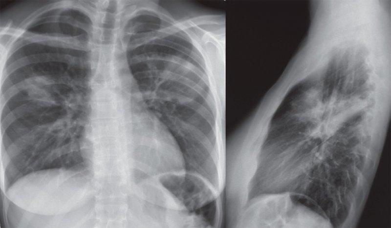 Двусторонняя полисегментарная пневмония верхних долей легких
