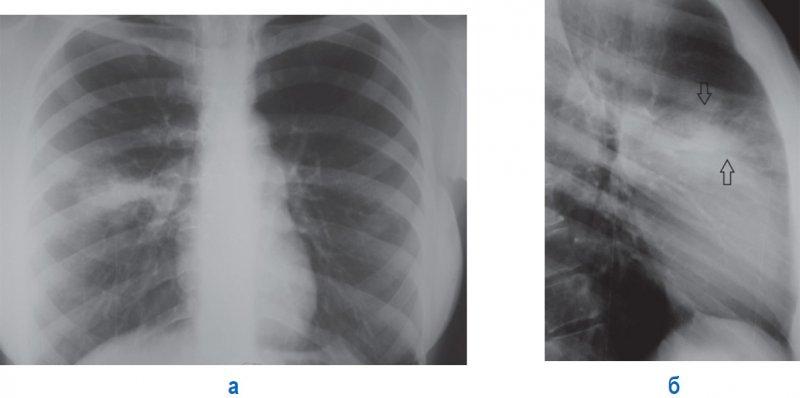 Правосторонняя сегментарная пневмония в верхней доле