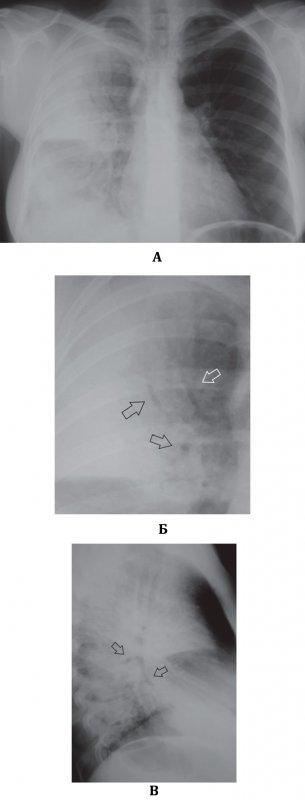 Полисегментарная (билобарная) правосторонняя плевропневмония