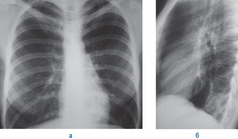 Левосторонняя пневмония нижней доли легкого