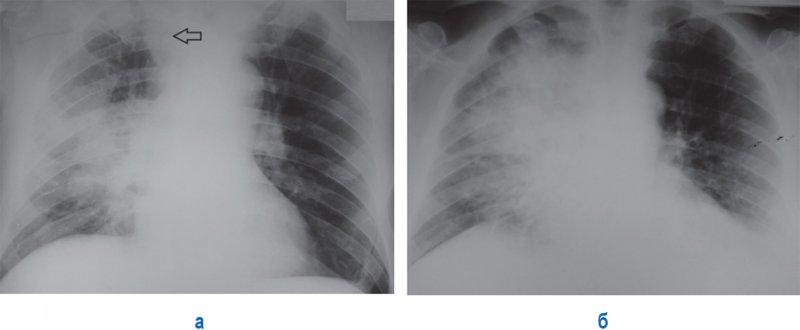Госпитальная (внутрибольничная) пневмония