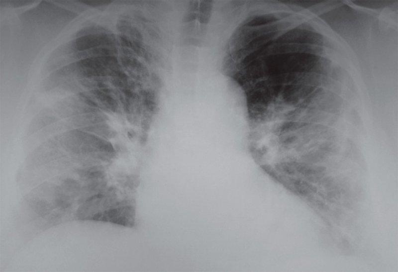 Рентгенограмма легких при респираторной вирусной инфекции