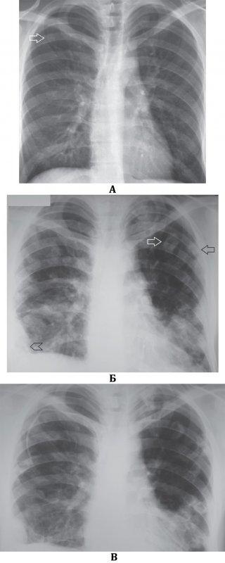 Септическая пневмония (Септическая эмболия легких)