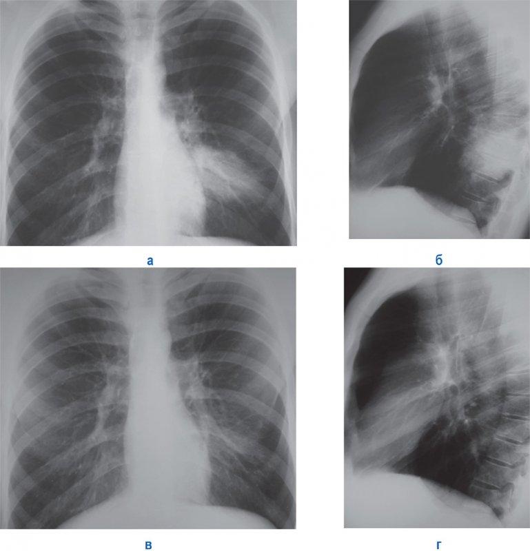 «Шаровидная» пневмония