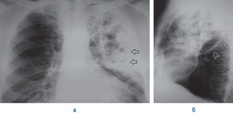 Инфекционная деструкция легких