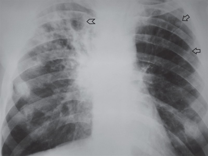 Фиброзно-кавернозный туберкулез