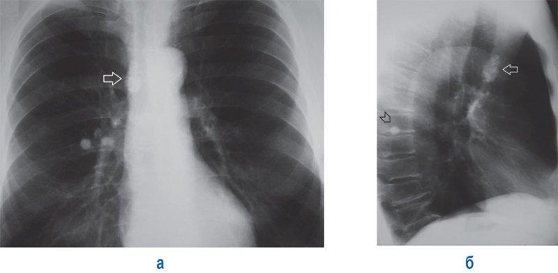 Остаточные явления туберкулеза