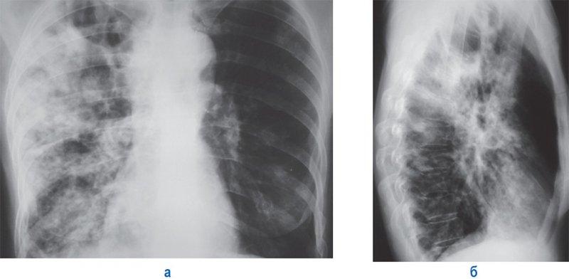Лобарная казеозная пневмония