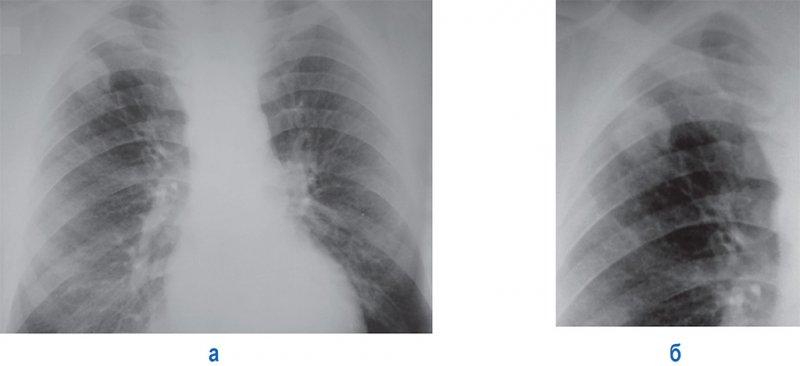 Округлый туберкулезный инфильтрат