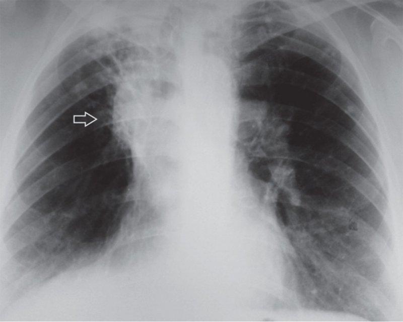 Посттуберкулезный цирроз