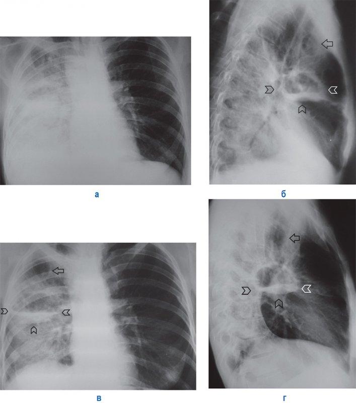 Правосторонняя полисегментарная пневмония, легочная деструкция