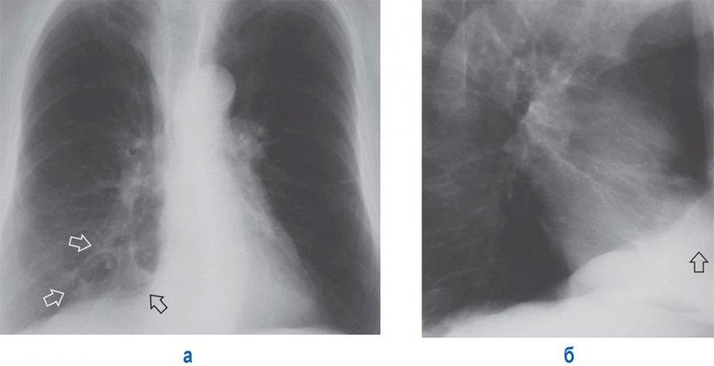 Фиброзные изменения в легких