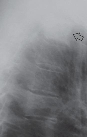 Остеобластический метастаз