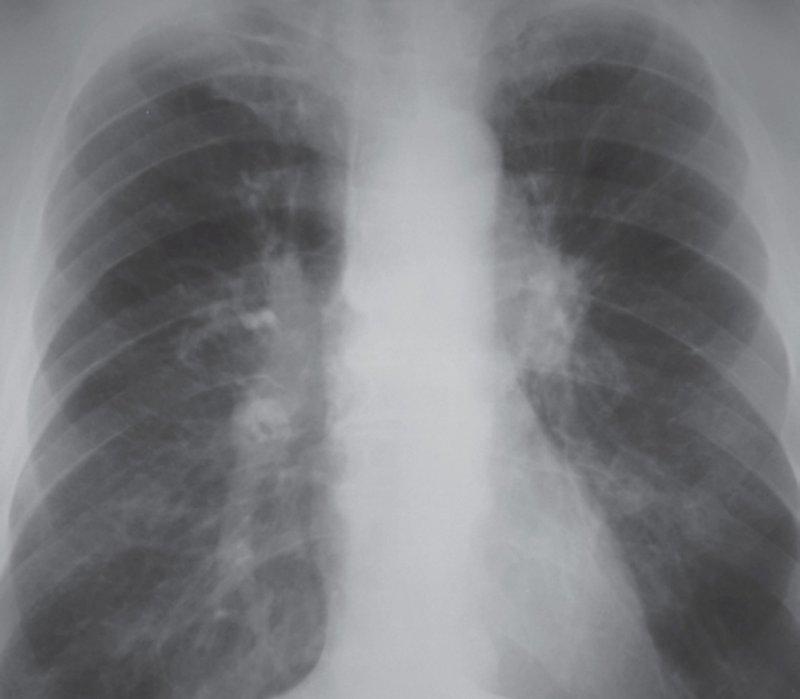 Рак бронха легкого рентгенограммы thumbnail