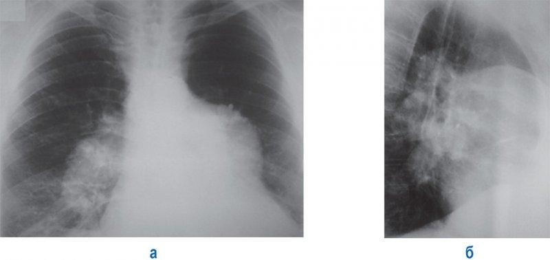 Аневризматическое расширение легочного ствола, левой и правой легочной артерии