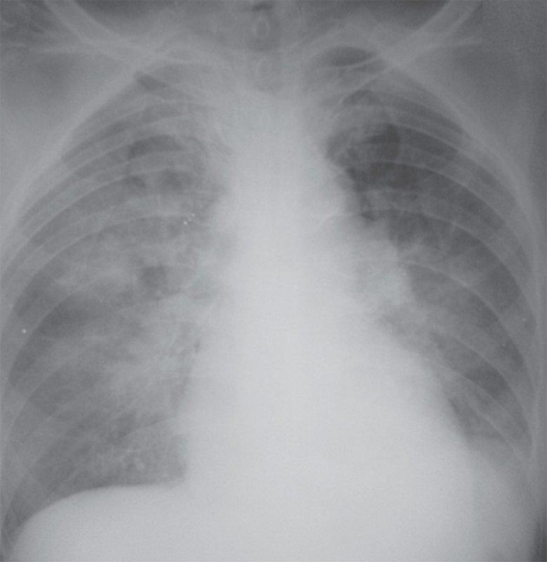 Альвеолярный отек легких