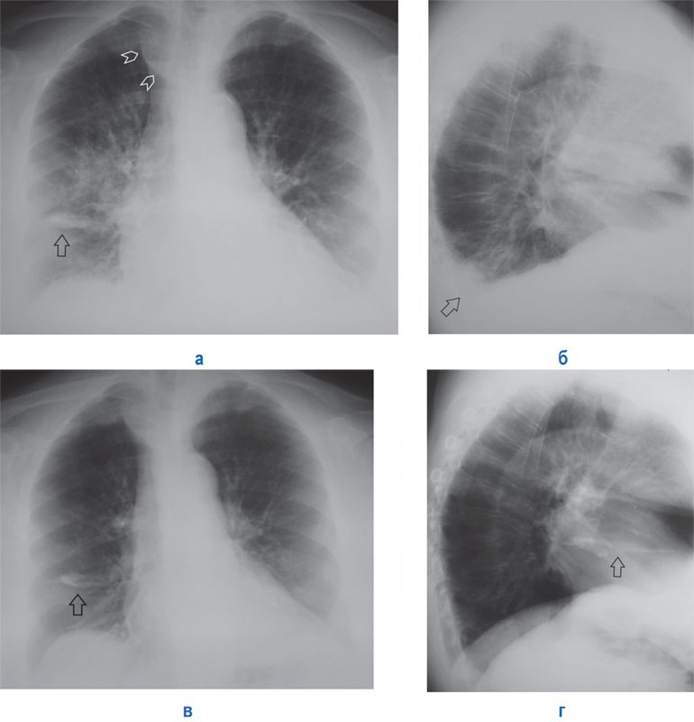 Пневмония на фоне венозного застоя в малом круге кровообращения