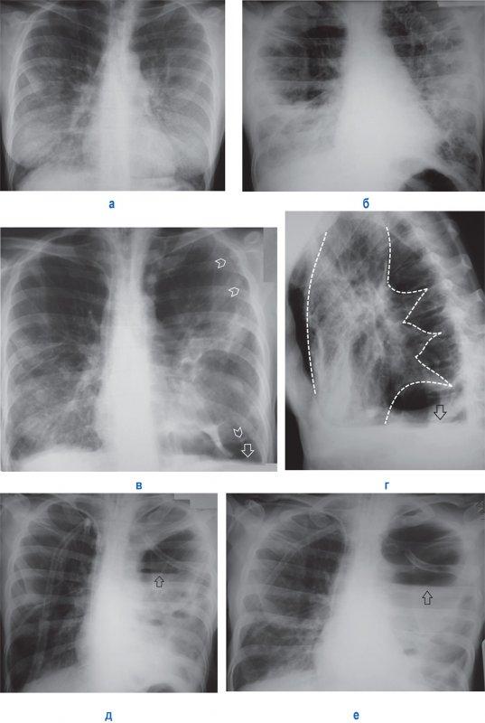 Пневмоцистная пневмония, Эмпиема плевры
