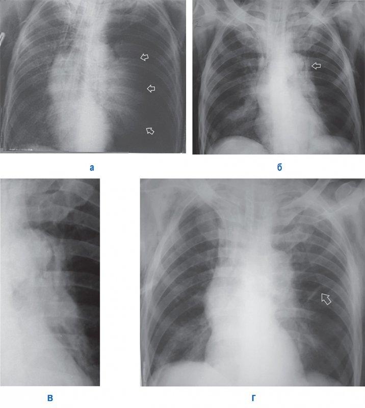 Напряженный пневмоторакс