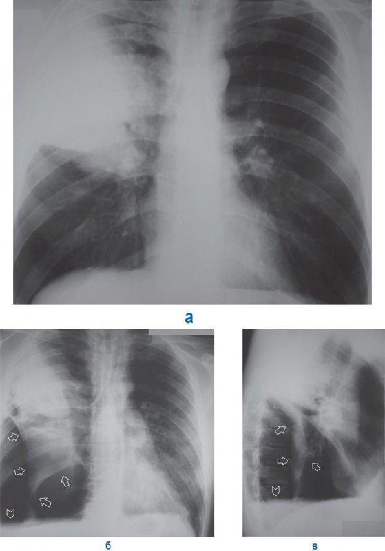 Частичный пневмоторакс