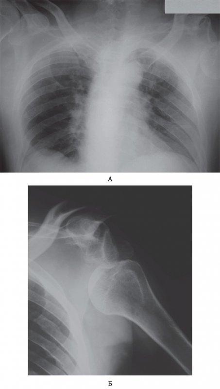 Вывих плечевой кости