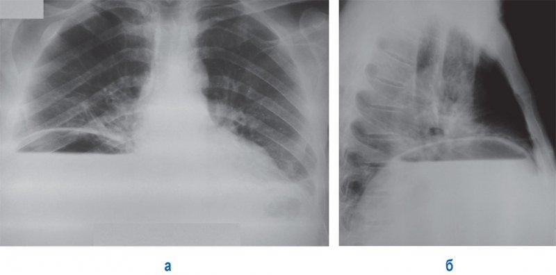Пневмогидроперитонеум