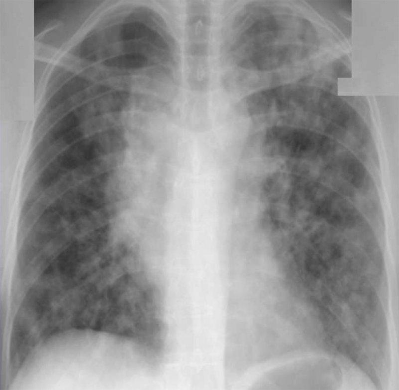 Аспергиллез легких
