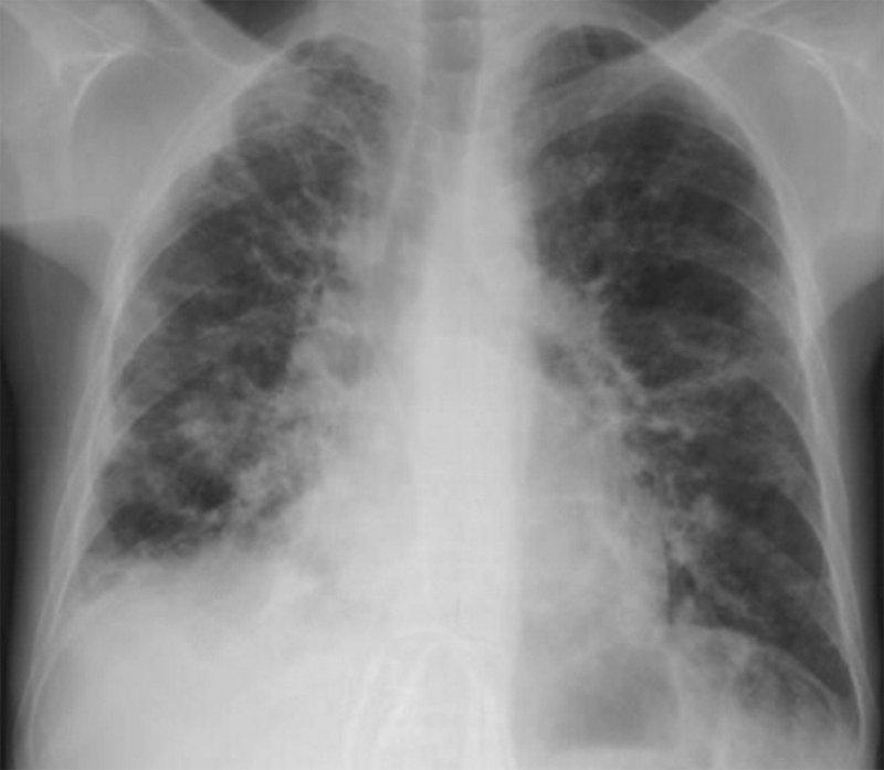 Нокардиоз легких
