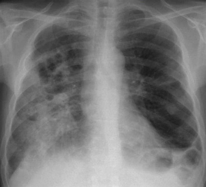 Правосторонняя полисегментарная деструктивная пневмония