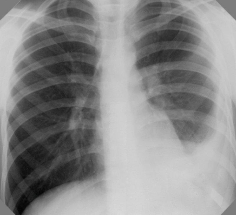 Туберкулезный экссудативный плеврит