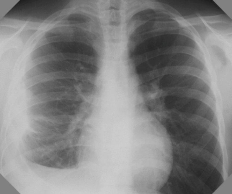 Туберкулезный осумкованный плеврит