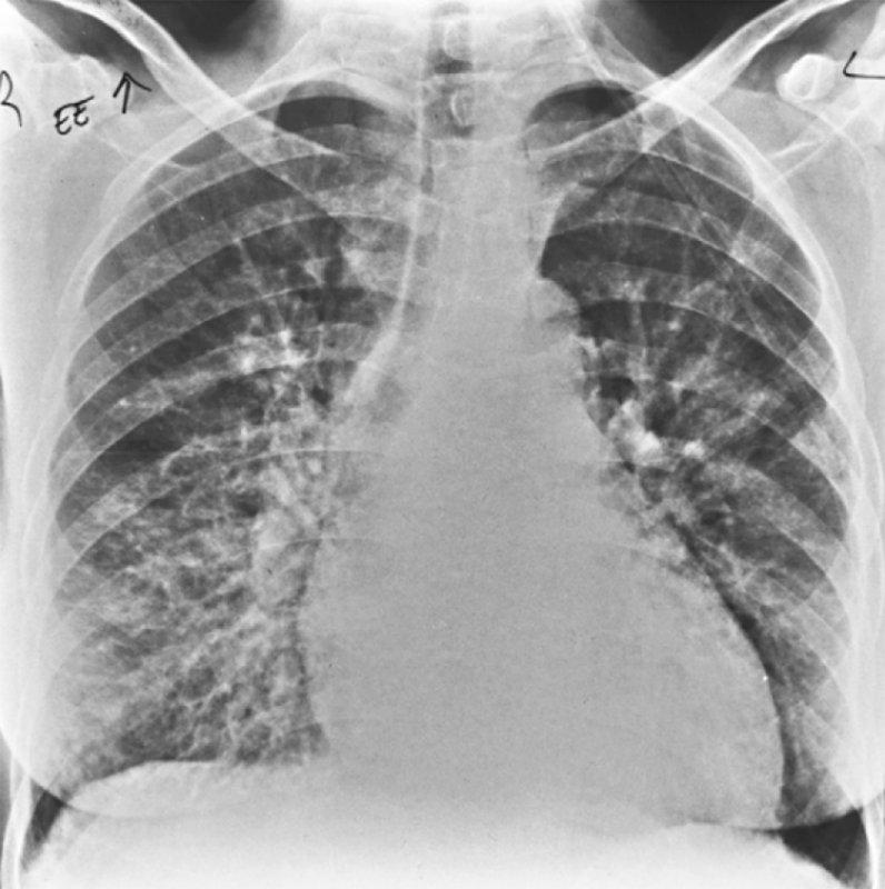 Острый пневмонит