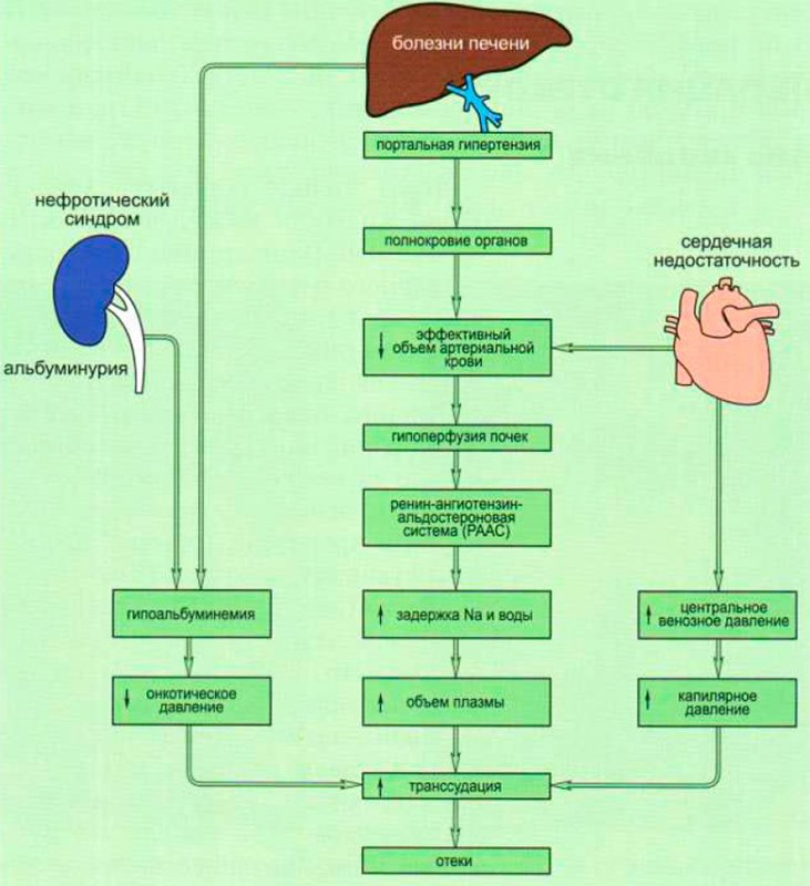Патогенез отечного синдрома