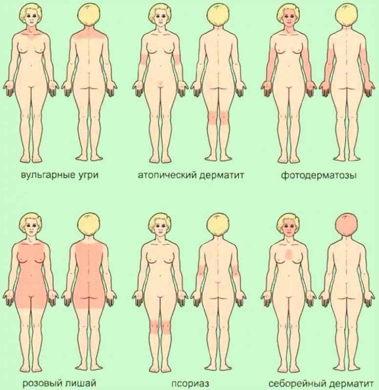 Патологические изменения на коже
