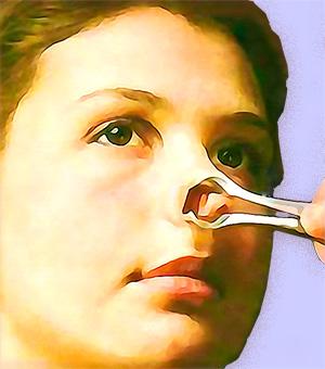 Осмотр носовой полости