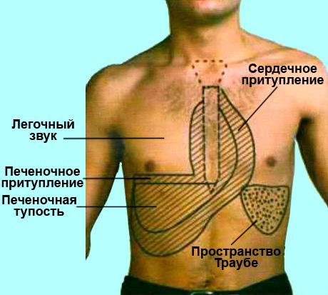 Топографическая перкуссия органов грудной клетки