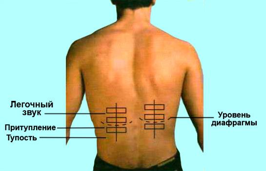 Определение нижних границ легких