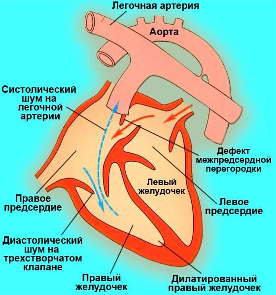 Шунтирование крови слева-направо