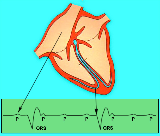 Брадикардия и полная атриовентрикулярная блокада сердца