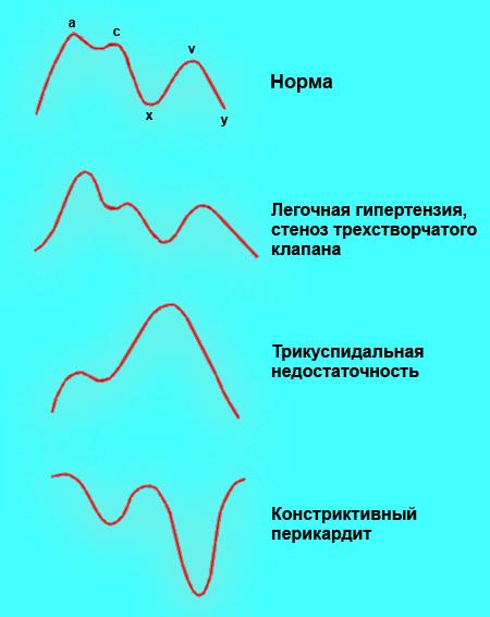 Венозный пульс